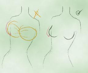 Расположение груди